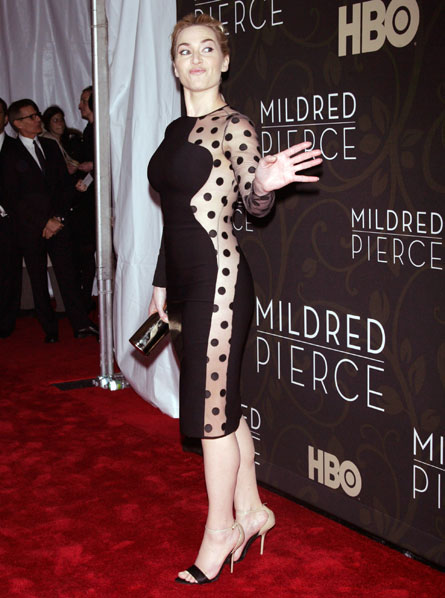 Kate Winslet is a dalmation