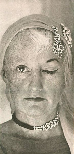 Phyllis Diller before and after